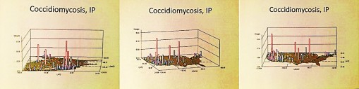 Coccidiomycosis_3ips