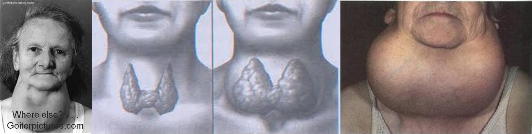 Головокружение при зобе щитовидной железы