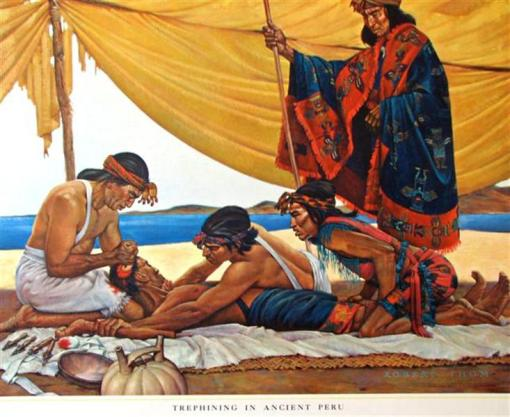 History of Medicine Trephining in Ancient Peru (Small)